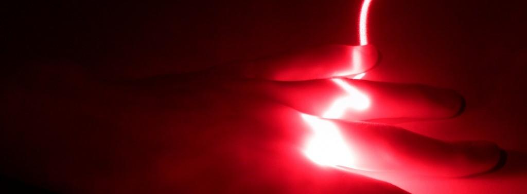 haar weg laseren kosten